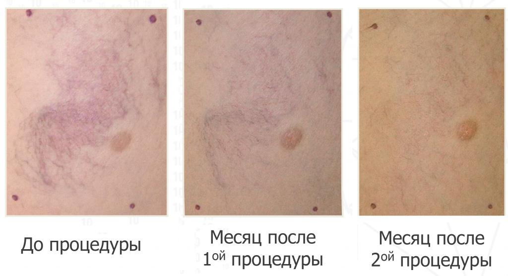 Лечение сосудов лазером фото до и после