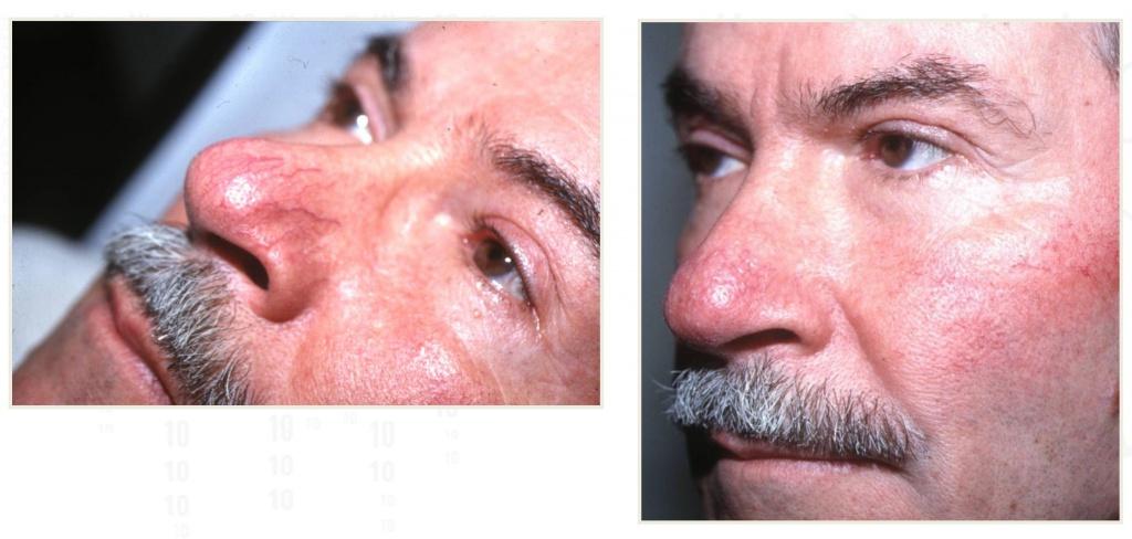Лечение сосудов лазером фото до и после (1)
