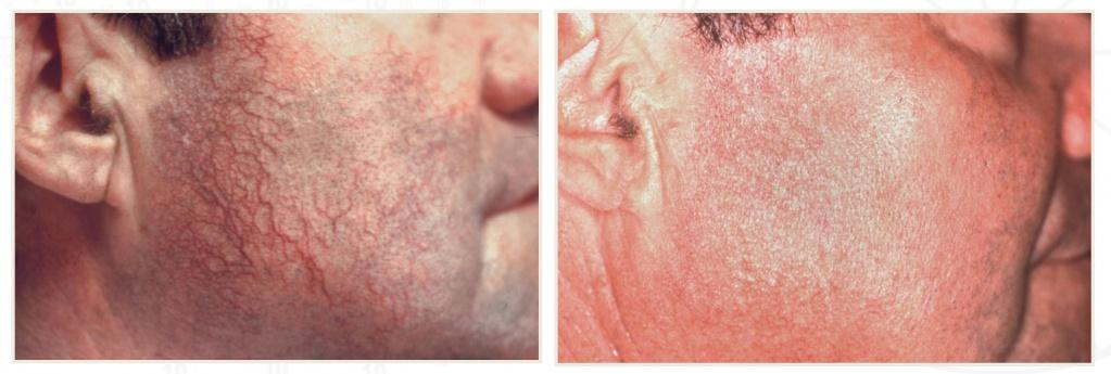 Лечение сосудов лазером фото до и после (2)